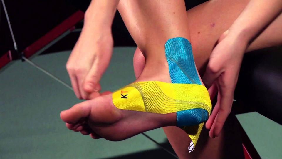 Kinesio Tape bermanfaat untuk mengatasi cedera otot ringan